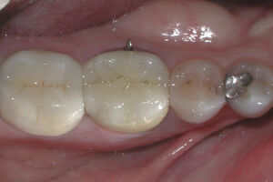 Tooth Before Premier 8