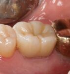 ZR-Cem - Zirconia Cementation Solution